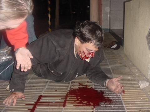 Marcelo Bustos Padovani, funcionario municpal de CArlos Ponce en 2004, caída tras recibir un itakazo de la policía por orden de Alberto Rodríguez Saá.